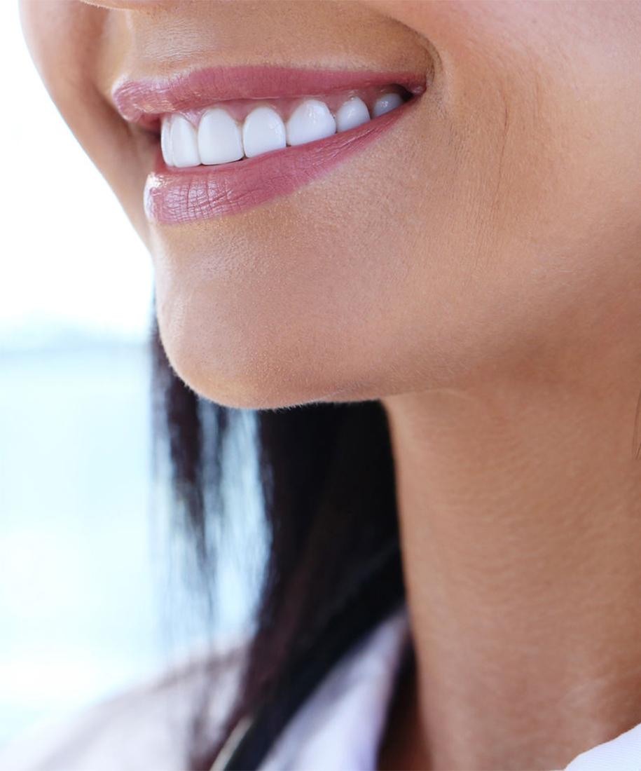 Estetica dental en Janos Dental. Carillas de porcelana. Madrid.
